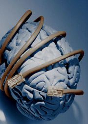 brain wrapped with network cables