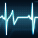 ECG Rhythms